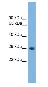 Western blot - Anti-Nkx1-2 antibody (ab105940)