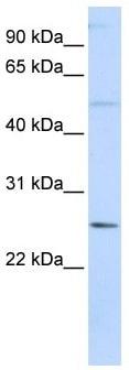 Western blot - Anti-FTHL17 antibody (ab105955)