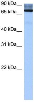 Western blot - Anti-ADAD2 antibody (ab105956)