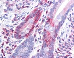 Immunohistochemistry (Formalin/PFA-fixed paraffin-embedded sections) - Anti-PDCD4 (phospho S457) antibody [9G6] (ab105998)
