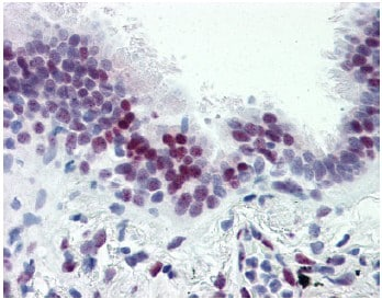 Immunohistochemistry (Formalin/PFA-fixed paraffin-embedded sections) - Anti-CASZ1 antibody (ab106148)