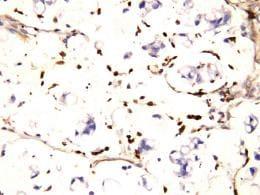 Immunohistochemistry (Formalin/PFA-fixed paraffin-embedded sections) - Anti-IFITM1 antibody (ab106265)