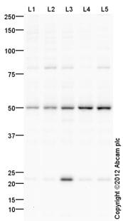 Western blot - Anti-TDG antibody (ab106301)