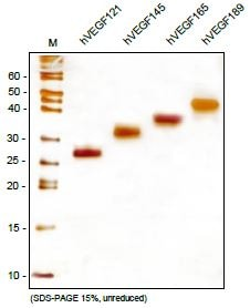 SDS-PAGE - Recombinant human VEGF189 protein (ab106307)