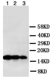 Western blot - Anti-LTA antibody (ab106353)