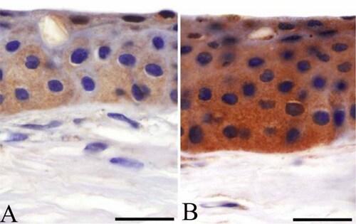 Immunohistochemistry (Formalin/PFA-fixed paraffin-embedded sections) - Anti-Matrilin 4 antibody (ab106379)