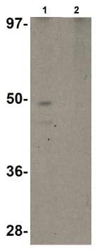 Western blot - Anti-RHBDD1 antibody (ab106402)