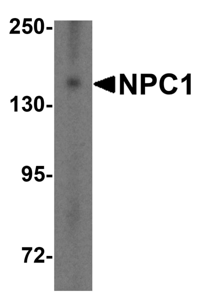 Western blot - Anti-Niemann Pick C1 antibody (ab106534)
