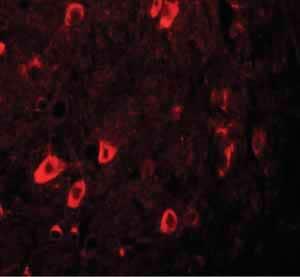 Immunocytochemistry/ Immunofluorescence - Anti-ZBTB3 antibody (ab106536)