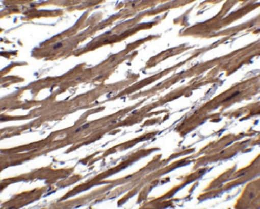Immunohistochemistry (Formalin/PFA-fixed paraffin-embedded sections) - Anti-RSPO1 antibody (ab106556)
