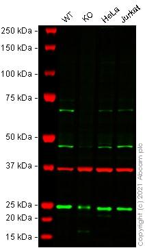 Western blot - Anti-SLC39A14/ZIP-14 antibody (ab106568)