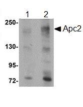 Western blot - Anti-Adenomatous polyposis coli protein 2 antibody (ab106600)