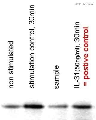 Western blot - Recombinant human IL-31 protein (ab106619)