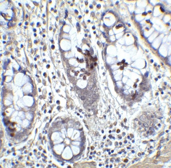 Immunohistochemistry (Formalin/PFA-fixed paraffin-embedded sections) - Anti-KLF4 antibody (ab106629)