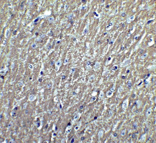 Immunohistochemistry (Formalin/PFA-fixed paraffin-embedded sections) - Anti-DCLK3 antibody (ab106653)