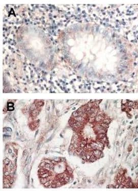Immunohistochemistry (Formalin/PFA-fixed paraffin-embedded sections) - Anti-AKT1 + AKT2 + AKT3 antibody (ab106693)