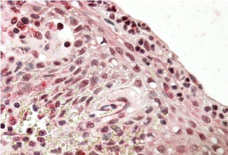 Immunohistochemistry (Formalin/PFA-fixed paraffin-embedded sections) - Anti-PRDM1/Blimp1 antibody (ab106766)
