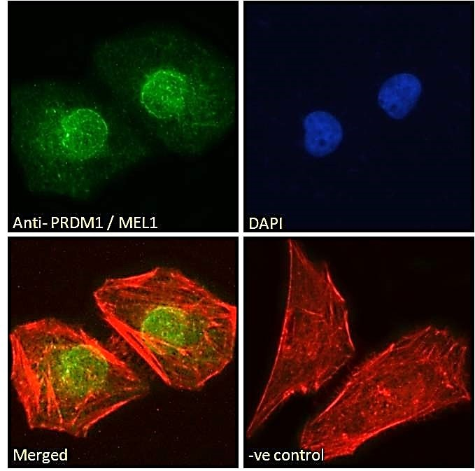 Immunocytochemistry/ Immunofluorescence - Anti-PRDM1/Blimp1 antibody (ab106766)