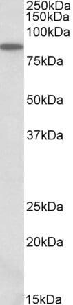 Western blot - Anti-P5CS antibody (ab106807)