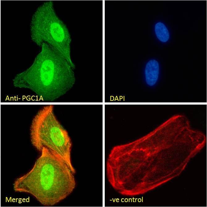 Immunocytochemistry/ Immunofluorescence - Anti-PGC1 alpha antibody (ab106814)