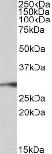 Western blot - Anti-PRX-1 antibody (ab106834)