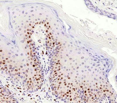Immunohistochemistry (Formalin/PFA-fixed paraffin-embedded sections) - Anti-p21 antibody [HUGO291] (ab107099)