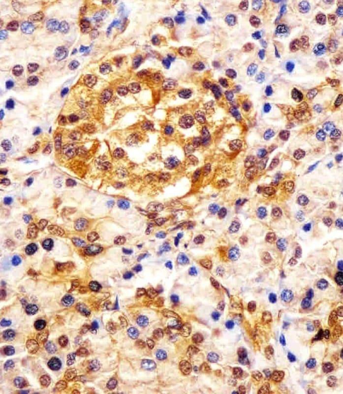 Immunohistochemistry (Formalin/PFA-fixed paraffin-embedded sections) - Anti-ESRP1 antibody (ab107278)