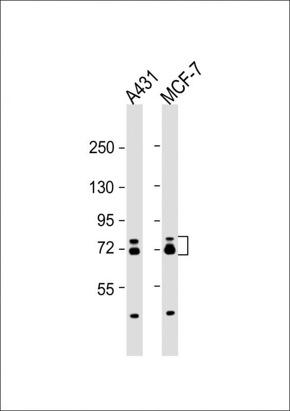 Western blot - Anti-ESRP1 antibody (ab107278)