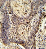 Immunohistochemistry (Formalin/PFA-fixed paraffin-embedded sections) - Anti-PPRC1 antibody (ab107384)