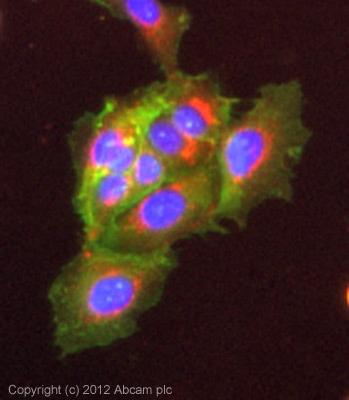 Immunocytochemistry/ Immunofluorescence - Anti-Phospholipase C gamma 1/PLC-gamma-1 antibody (ab107455)