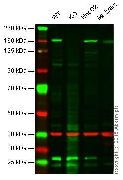 Western blot - Anti-Phospholipase C gamma 1/PLC-gamma-1 antibody (ab107455)