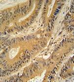 Immunohistochemistry (Formalin/PFA-fixed paraffin-embedded sections) - Anti-GNAT3 antibody (ab107512)