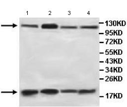 Western blot - Anti-AGBL3 antibody (ab107590)