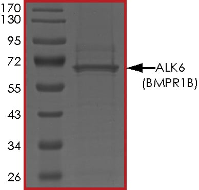 SDS-PAGE - Recombinant human BMPR1B protein (ab107949)