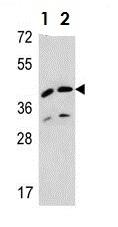 Western blot - Anti-L2HGDH antibody (ab108012)