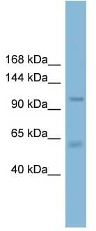 Western blot - Anti-CLCA2 antibody (ab108101)