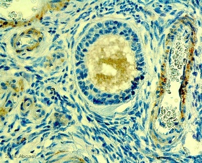 Immunohistochemistry (Formalin/PFA-fixed paraffin-embedded sections) - Anti-POTEE antibody (ab108190)