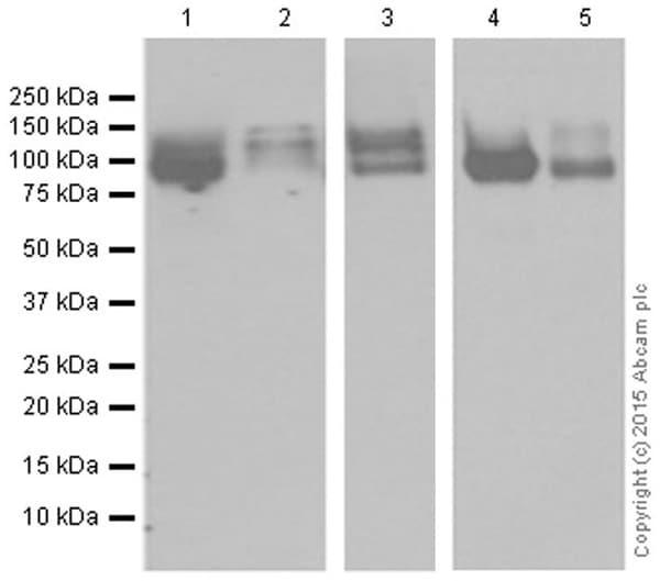 Western blot - Anti-ApoER2 antibody [EPR3326] (ab108208)