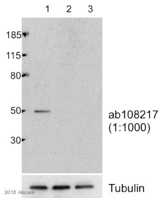 Western blot - Anti-KMT3C / SMYD2 antibody (ab108217)