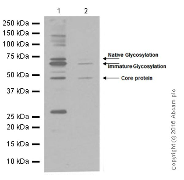 Western blot - Anti-CD39 antibody [EPR3678(2)] (ab108248)