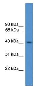 Western blot - Anti-KLHDC3 antibody (ab108262)