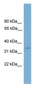 Western blot - Anti-Lumican antibody (ab108286)