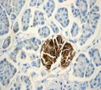 Immunohistochemistry (Formalin/PFA-fixed paraffin-embedded sections) - Anti-CD99 antibody [EPR3096] (ab108297)