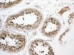 Immunohistochemistry (Formalin/PFA-fixed paraffin-embedded sections) - Anti-CD98 antibody [EPR3548(2)] (ab108300)