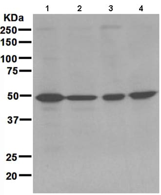 Western blot - Anti-AMSH antibody [EPR4361] (ab108301)