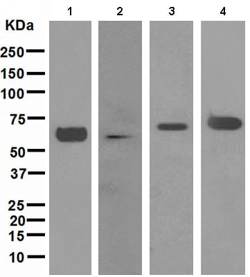 Western blot - Anti-alpha Internexin antibody [EPR1529] (ab108302)