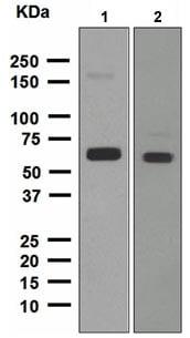 Western blot - Anti-ALDH2 antibody [EPR4493] (ab108306)