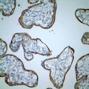 Immunohistochemistry (Formalin/PFA-fixed paraffin-embedded sections) - Anti-CD46 antibody [EPR4014] (ab108307)