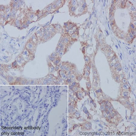 Immunohistochemistry (Formalin/PFA-fixed paraffin-embedded sections) - Anti-CD147 antibody [EPR4052] (ab108317)
