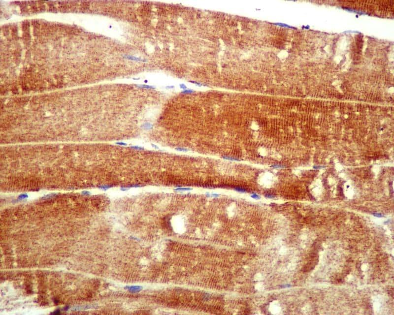 Immunohistochemistry (Formalin/PFA-fixed paraffin-embedded sections) - Anti-ATG4A antibody [EPR4122] (ab108322)